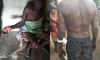 Special Adviser To Cross Rivers State Govt. Allegedly Burn Locals With Fire